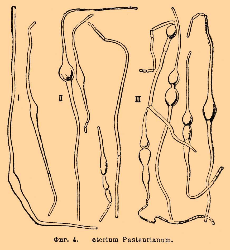 транзит от паразитов