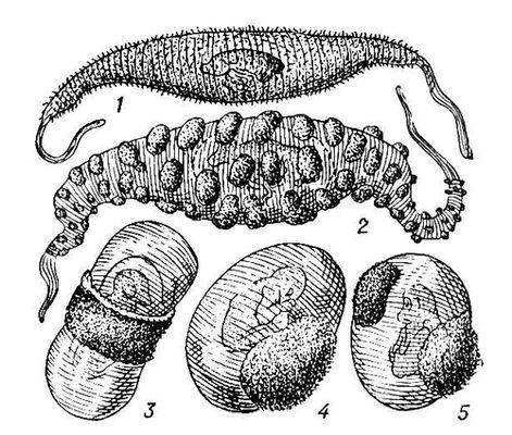 Типы плацент (внешний вид): 1
