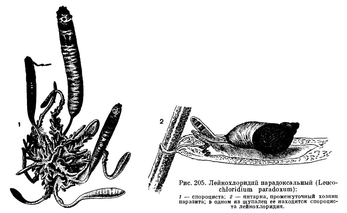 паразиты в мочевом пузыре человека