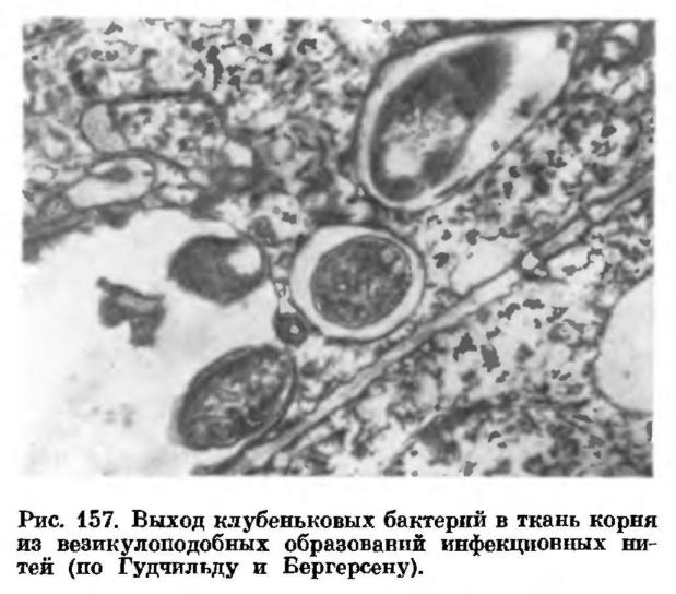 фото всех паразитов в человеческом организме