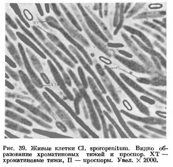 Строение клеток спорообразующих анаэробных бактерий.