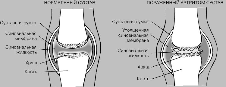 Артрит суставной сумки полость запястно-пястного сустава латынь