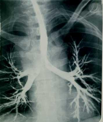 ТРАХЕЯ, видная в центре рентгенограммы, разделяется на два главных бронха, ведущих к правому и левому легкому и разветвляющихся на бронхиальное дерево.