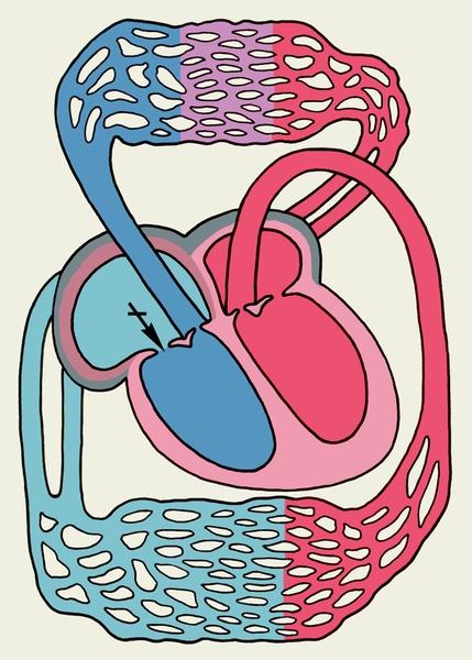 Пороки сердца приобретённые