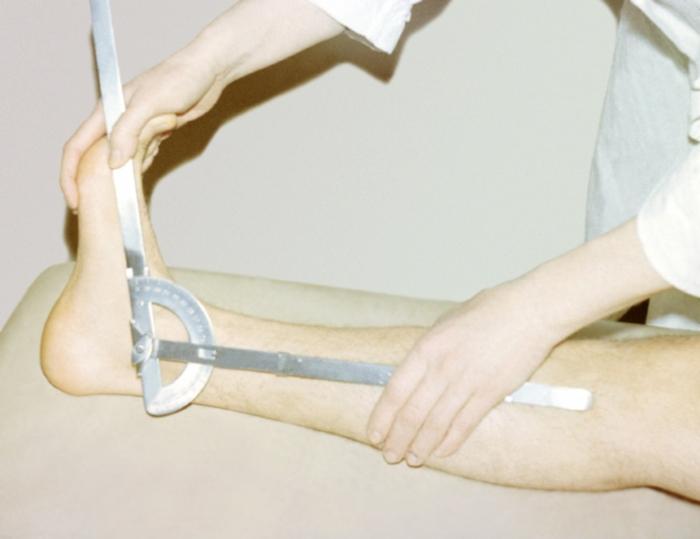 Рис. 10. Измерение амплитуды движений в голеностопном суставе: <a href=