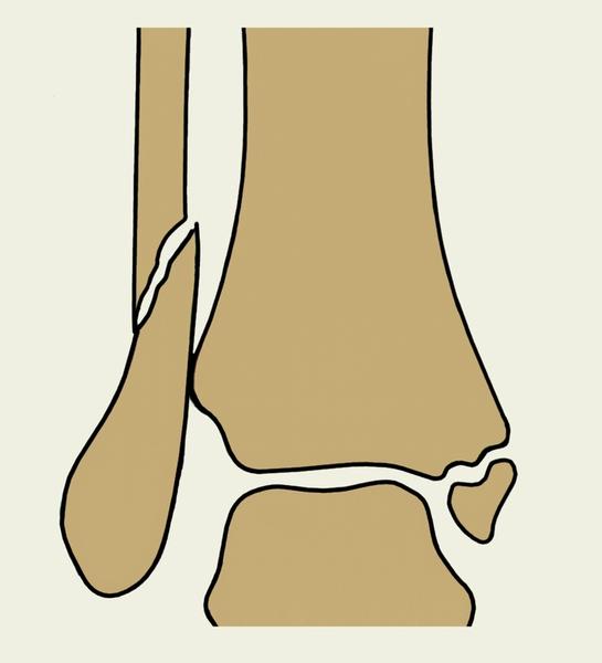 подвывих лодыжки после перелома