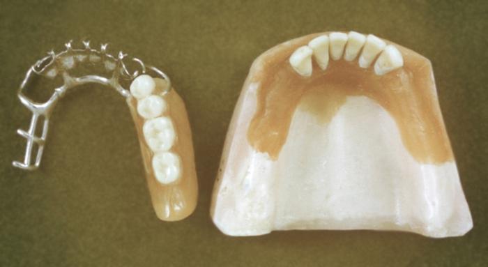 Протезирование зубов - это... Что такое Протезирование зубов?