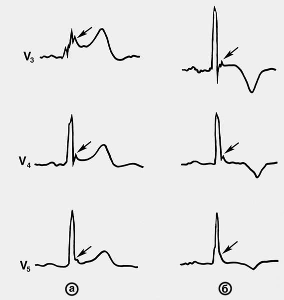 Электрокардиограммы (в