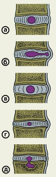 Рис. 1. Схематическое изображение различных вариантов патологических изменений межпозвоночного диска: а — нормальный межпозвоночный диск (приведен для сравнения); б — протрузия диска в результате перемещения части студенистого ядра и выпячивание фиброзного кольца в позвоночный канал; в — протрузия диска в результате повышения его гидрофильности; г — протрузия диска в результате его обезвоживания; д — внутригубчатая грыжа диска