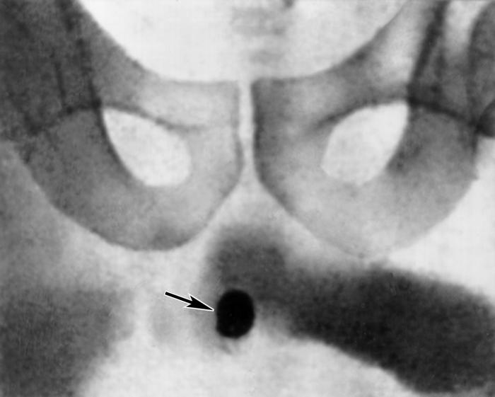 Уретрография фото