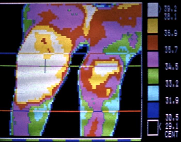 Рис. 11. Термограмма согнутых коленных суставов (передняя проекция) при обострении ревматоидного артрита: правый коленный сустав резко деформирован, увеличена теплопродукция обоих суставов
