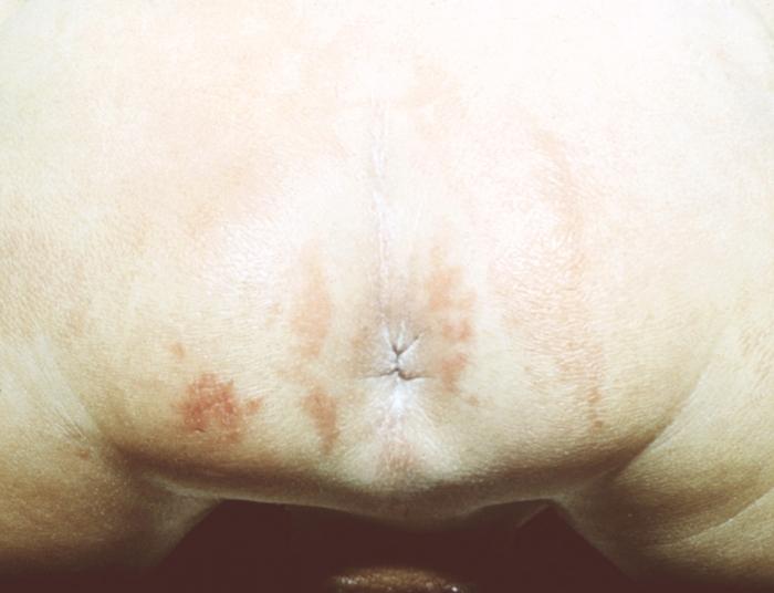 Геморрой симптомы мочеиспускание