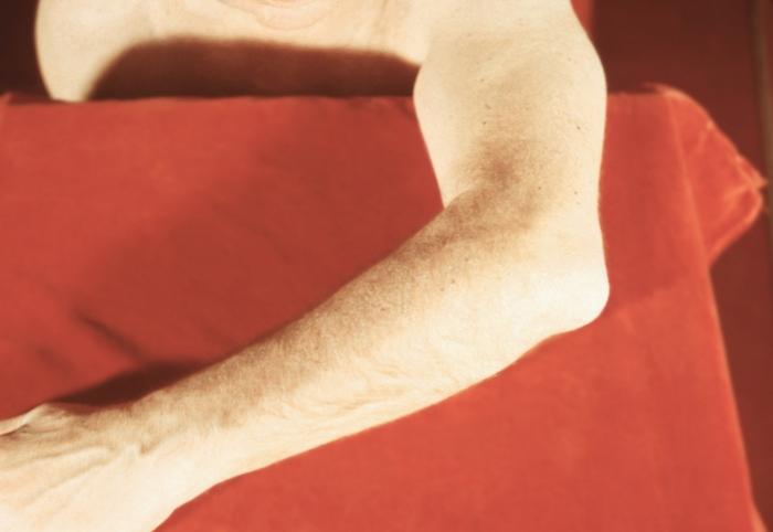 Воспаление синовиальной сумки в области левого локтевого отростка (бурсит)