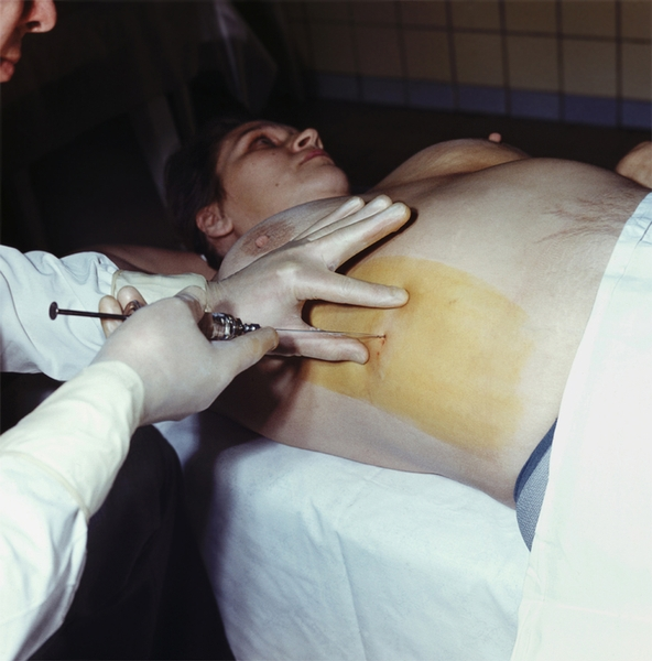 По официальным данным 200 тысяч петербуржцев инфицированы гепатитом В и С. А лечение получают далеко не все...