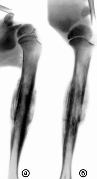 Рис. 1. Рентгенограммы плечевой кости и плечевого сустава (а - прямая, б...