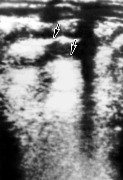 Рис. 8. Ультразвуковая сканограмма кишечника при болезни Крона: стенка кишки (справа) значительно утолщена, просвет кишки сужен, остальная часть кишки не изменена (область поражения указана стрелками)