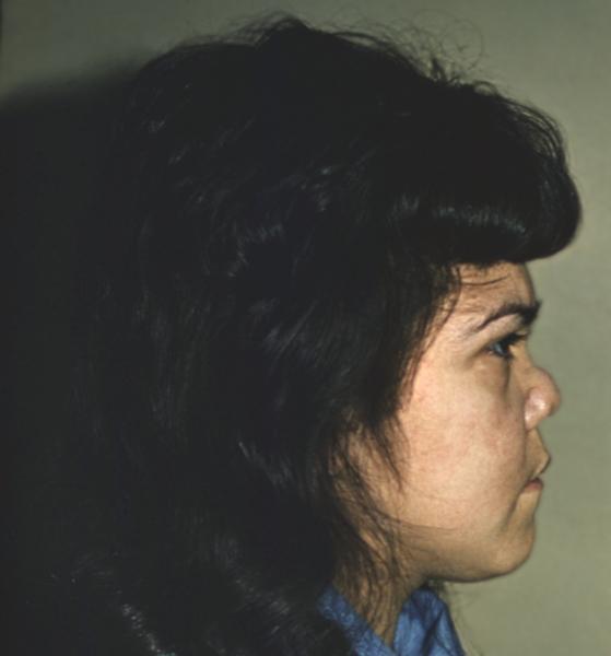 признаки сифилиса носа