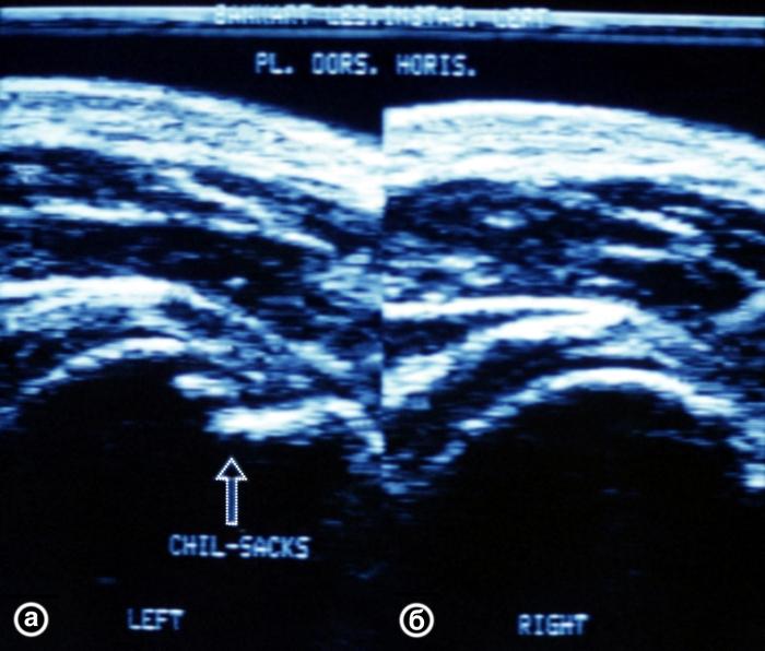 Рис. 20. Ультрасонограммы плечевых суставов (задний горизонтальный срез) при импрессионном переломе головки левой плечевой кости (а) и в норме (б): контур головки плечевой кости ступенеобразно деформирован в месте импрессии (указано стрелкой)