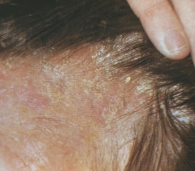 Лечение золотистого стафилококка в кишечнике у детей энтерофурилом