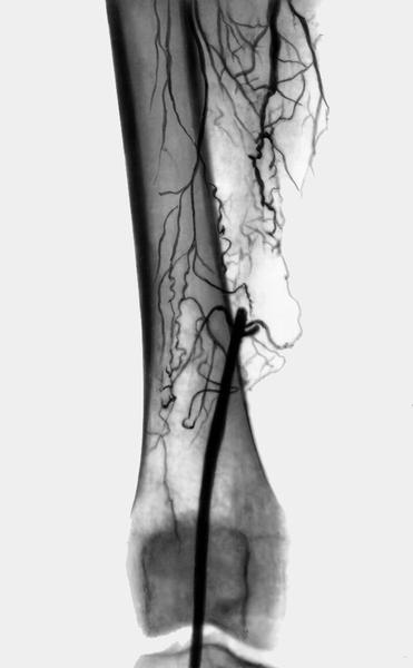 Чем отличается вена от артерии