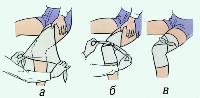 Рис. 4. косыночная повязка на коленный сустав: а, б, в- этапы наложения...