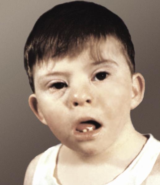 Даун синдром детей 53