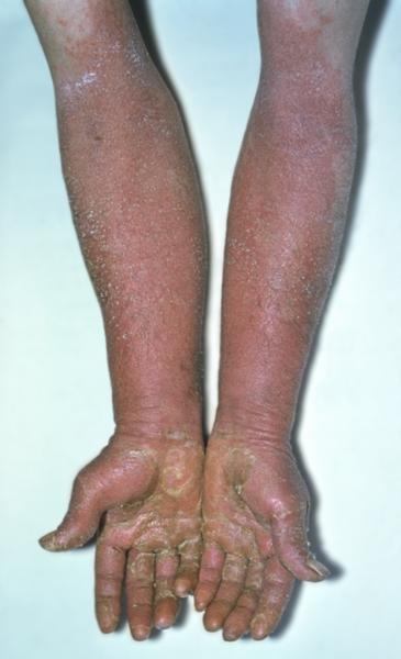 лекарственная аллергия причины