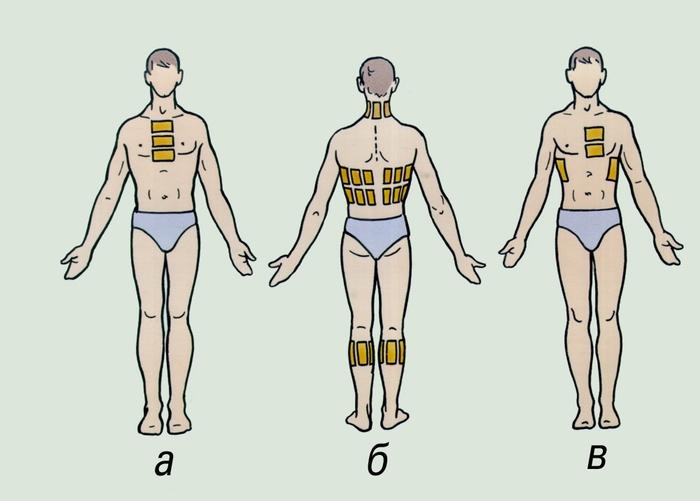 Горчичники при кашле ставят в зависимости от болезни. при ларингите горчичники ставят на переднюю поверхность шеи...