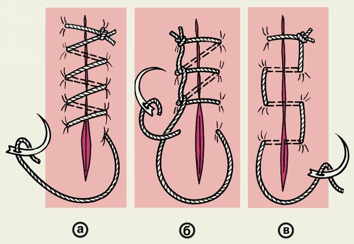 Рис. 7. Схематическое изображение простого (линейного) обвивного непрерывного шва и его вариантов: а — простой обвивной шов; б — обвивной шов по Мультановскому; в — матрацный шов
