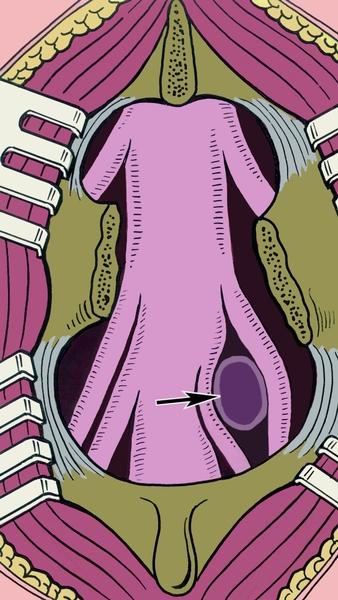 Рис. 5. Схематическое изображение грыжи межпозвоночного диска, сдавливающей два корешка спинного мозга: грыжа указана стрелкой