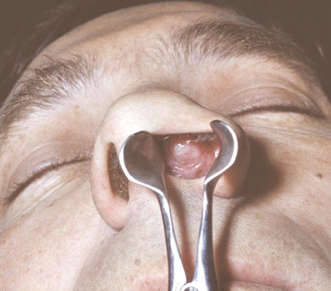 Рис. 5. Аденоматозный полип полости носа (риноскопическая картина)