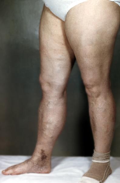 вес паразитов организме человека