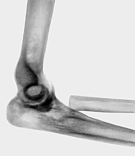 Вывихи и подвывихи головки лучевой кости