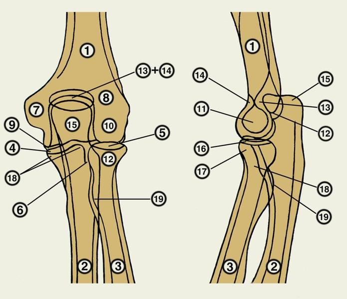 Перелом лучевой кости в нижней трети и вывих в дистальном луче-локтевом суставе