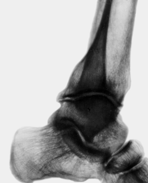 Рентгенограмма голеностопного сустава при...