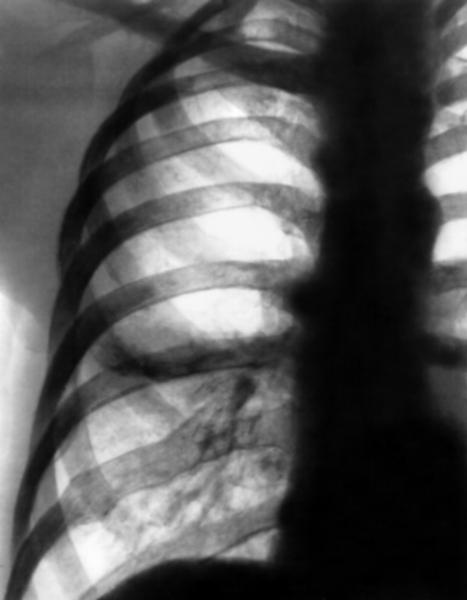 Фрагмент рентгенограммы органов грудной клетки.