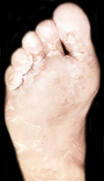 Гомеопатия в лечение грибка ногтей