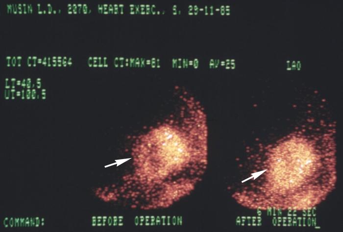 Сцинтиграмма фото