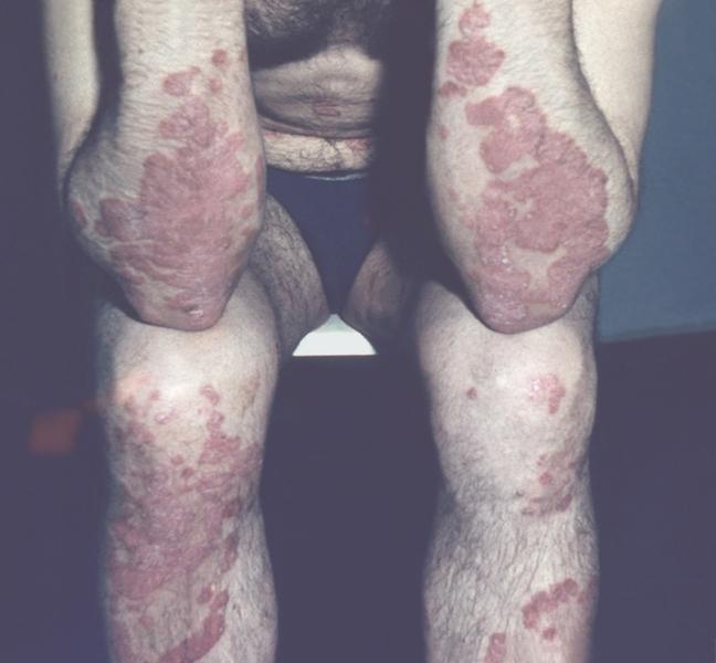 Псориатические бляшки в области локтевых и коленных суставов.