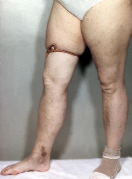 Яблочный уксус для вен на ногах
