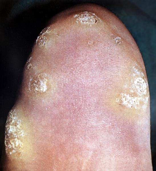 Плоские папилломы на коже как избавиться