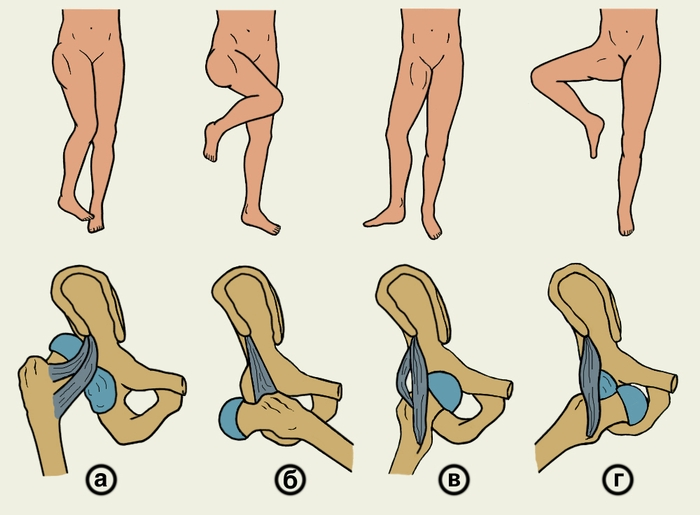Описание: Чтобы уменьшить боль и отек, на место растяжения связок на первые два.
