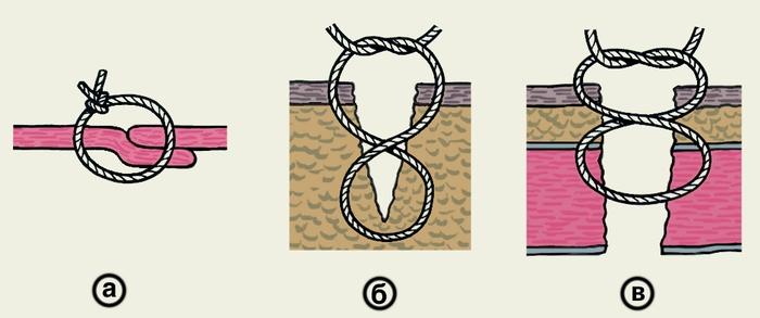 Рис. 10. Схематическое изображение наложения швов по Жирару-Зику для удвоения апоневроза (а) и съемных 8-образных швов по Спасокукоцкому (б, в)