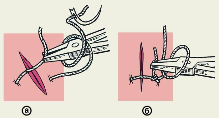 Рис. 3. Схематическое изображение инструментального (аподактильного) способа завязывания хирургического узла: а — после выкола иглы длинным концом нити обернут <a href=