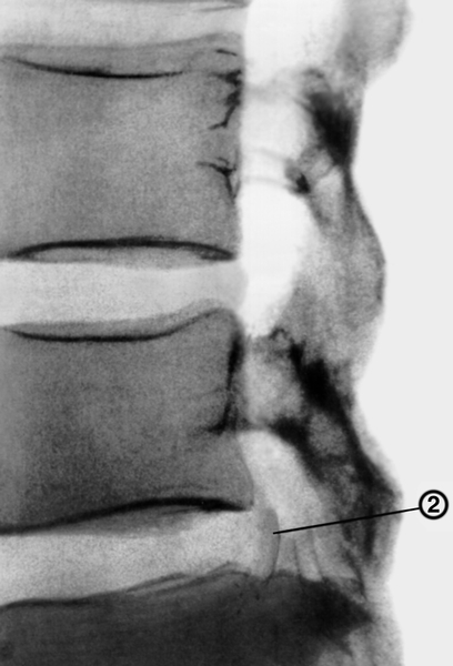 Рис. 9а). Пневмомиелограмма при остеохондрозе позвоночника (боковая проекция): полный перерыв воздушного столба в спинномозговом канале в результате выпячивания в него грыжи межпозвоночного диска (2)