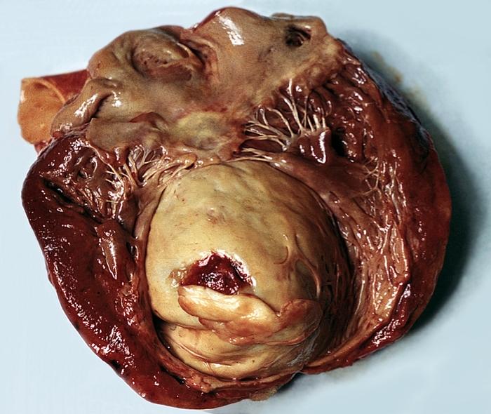 Аневризма сердца - это... Что такое Аневризма сердца?