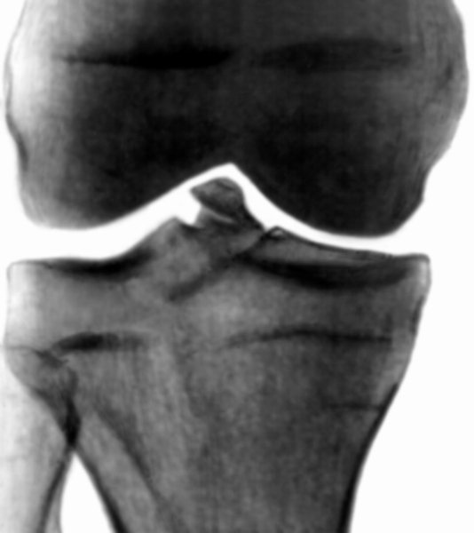 Перелом бокового межмыщелкового возвышения коленного сустава боли в суставах ног отзывы