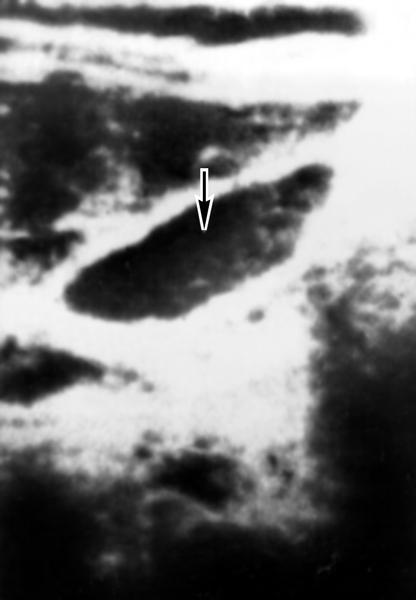 Рис. 3г). Ультразвуковая сканограмма желчного пузыря при некоторых видах его патологии: желчный пузырь при хроническом холецистите (указан стрелкой); стенка пузыря утолщена, имеет повышенную в связи с уплотнением эхогенность
