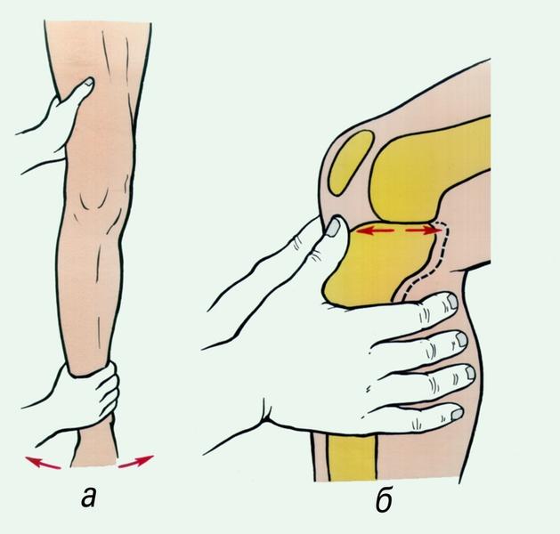 """...ящика """" при повреждении крестообразных связок коленного сустава (б)"""