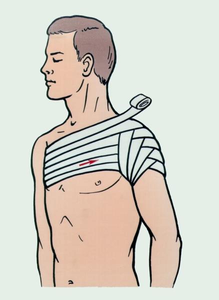 Рис. 3. Колосовидная повязка на плечевой сустав.  Стрелкой показано направление бинтования.